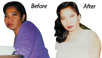 Cecilia Before - Youthfulness Aling with Beauty Achieved